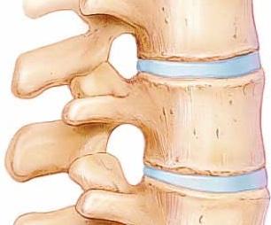 vertebral disc
